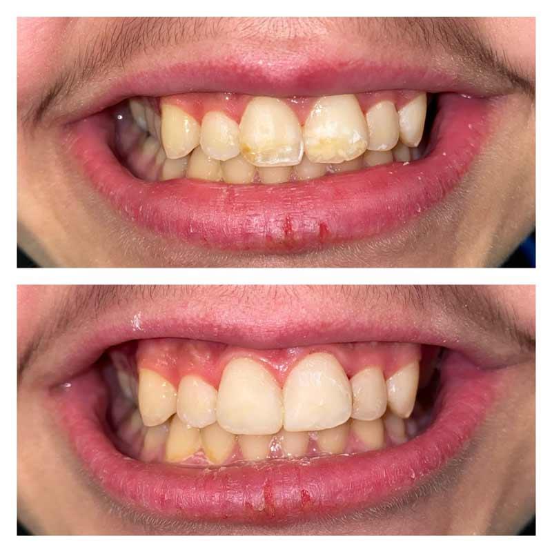 Teeth Exam Cleaning Kalamazoo MI
