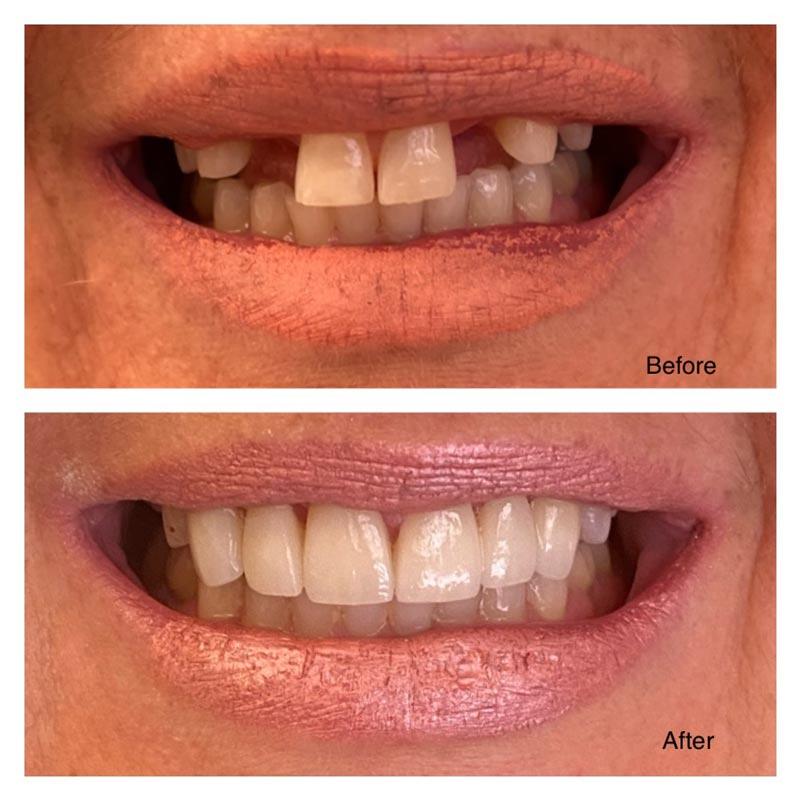 Cosmetic Dentists in Kalamazoo MI