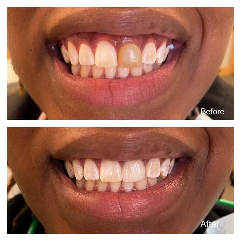 Kalamazoo MI Cosmetics Dentist